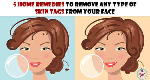 5 Home Remedies to Remove Any Type of Skin Tags from Your Face (1)