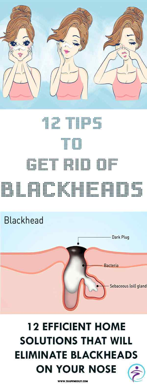 12 Tips to Get Rid of Blackheads
