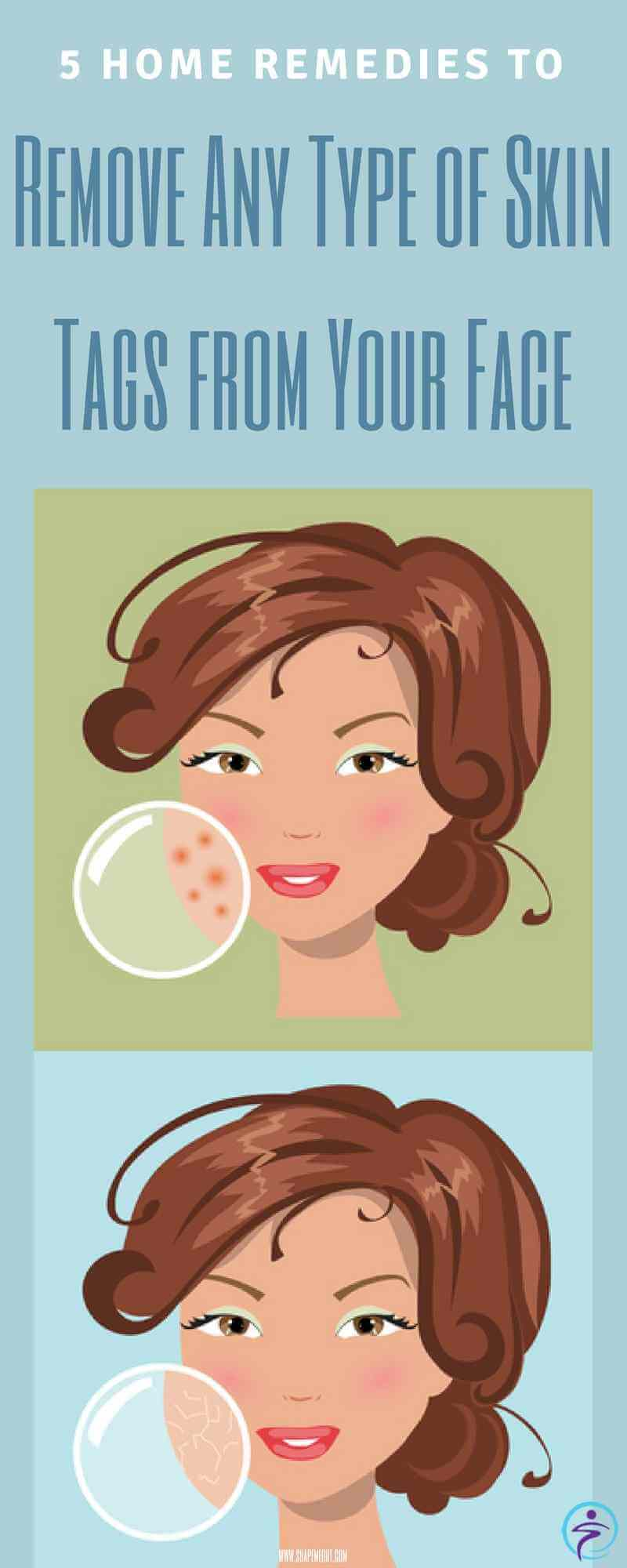 Home Remedies to Remove Any Type of Skin Tags from Your Face