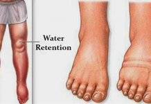 fluid retention