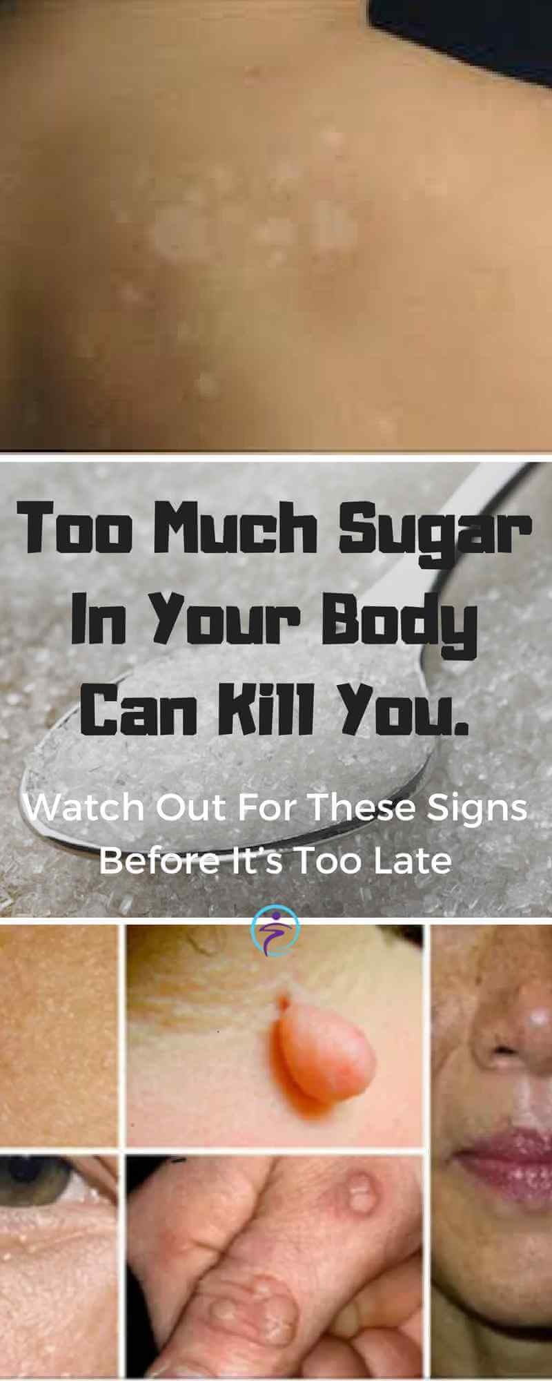 Too Much Sugar In Your Body Can Kill You. Watch Out For These Signs Before It's Too Late